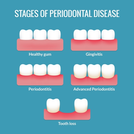 An infographic showing the various Stages of Periodontal Disease